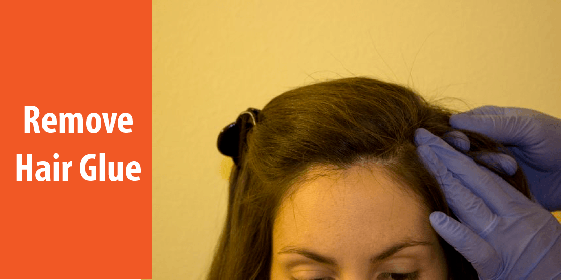 how to remove hair glue